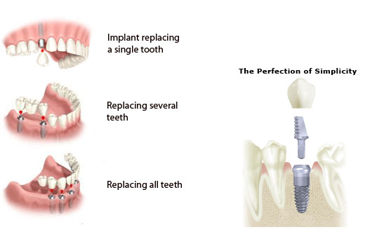 Different types of implants for teeth
